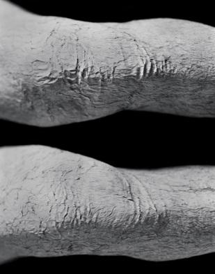 Patellae
